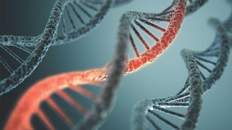 Deciding on a PCR Detection Method