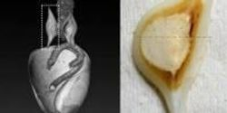 How Do Marine Mollusks Process Food Without Teeth?