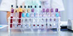FDA Suggests Complete Overhaul of IVD Regulation