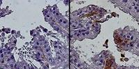 Study Links Progenitor Cells to Age-Related Prostate Growth