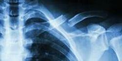 'Bone in a Dish' Opens New Window on Cancer Initiation, Metastasis, Bone Healing