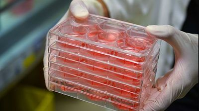 Microplate Technology Options for Organoids