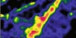 Improved pH Probes May Lead to Better Cancer Treatments