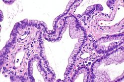 A New Machine Learning Model Can Classify Lung Cancer Slides at the Pathologist Level