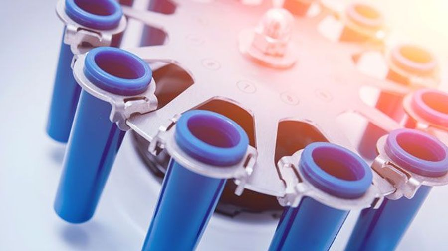 Centrifuge Buyer's Guide