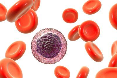 Low Lymphocyte Count May Indicate Increased Mortality Risk