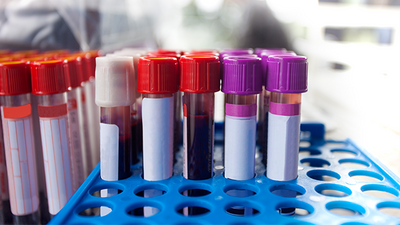 Blood Tests Can Predict Timing of Final Menstrual Period
