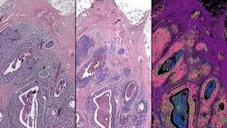 Hybrid Microscope Could Bring Digital Biopsy to the Clinic