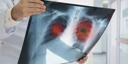 AI May Help Predict Responses to Non-Small Cell Lung Cancer Systemic Therapies