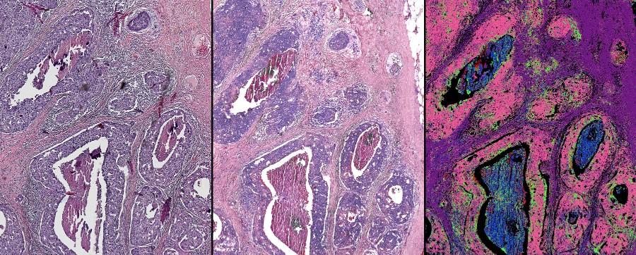 Hybrid Microscope Creates Digital Biopsies