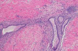 Endometriosis: Theories of Pathogenesis