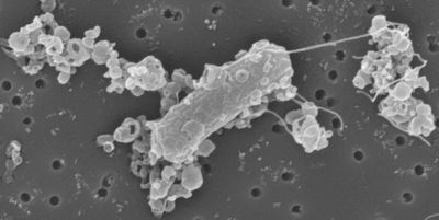 Personalized Microrobots Deliver Drugs to Cells