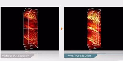 How to Maximize Resolution in Deep Imaging