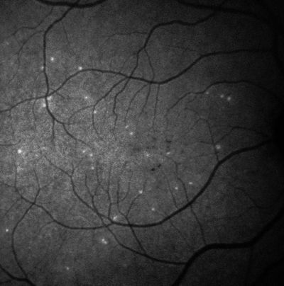 AI-Supported Test for Very Early Signs of Glaucoma Progression