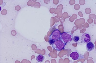 A Step Toward Standardized Residual Disease Testing in Acute Myeloid Leukemia