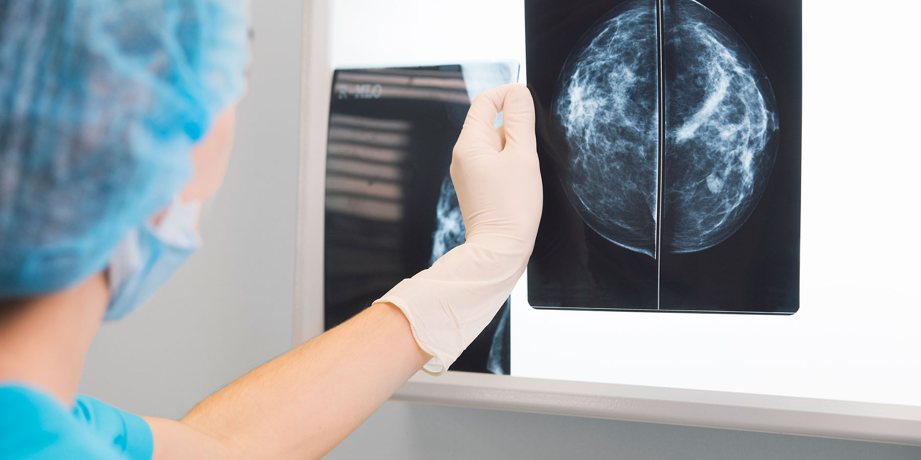The Many Ways Carcinogens Trigger Development of Breast Cancer