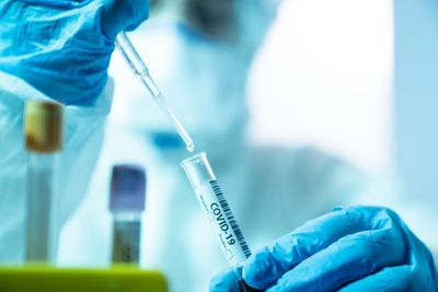 A Guide to Setting up a Coronavirus (COVID-19) Clinical Diagnostic Testing Laboratory