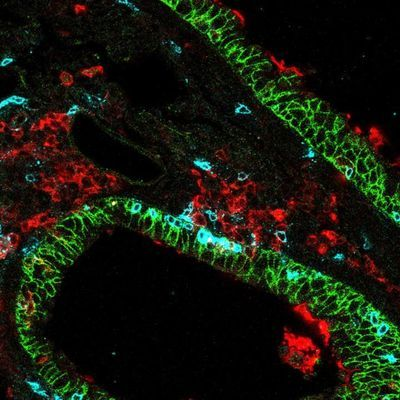 Targeting T Cells in Lungs Could Mean Immunity against Respiratory Viruses