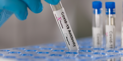 How Accurate Are Antibody Tests for Detecting COVID-19?