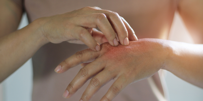 Biomedical Researchers Get Closer to Why Eczema Happens