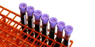 A Micro-Lab on a Chip Detects Blood Type within Minutes