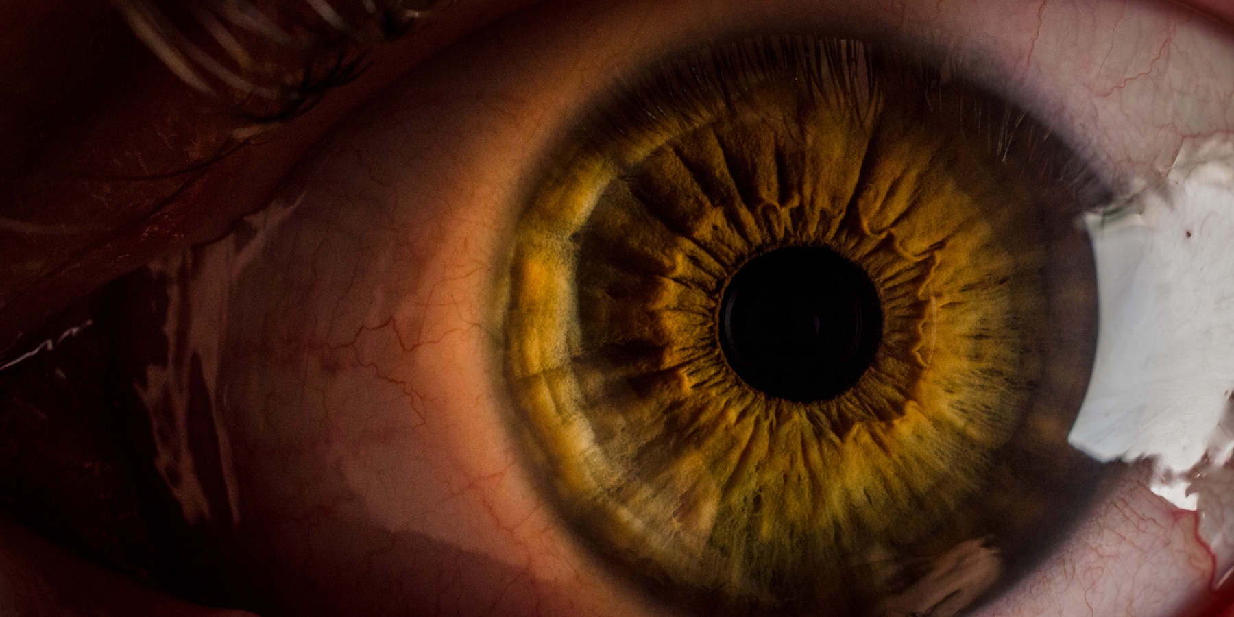 How Traumatic Experiences Can Leave Their Mark on the Human Eye