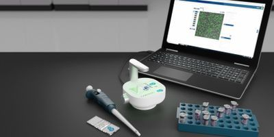 CytoSMART Technologies Announces Automated Organoid Counter