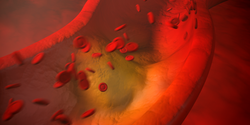 Nanoparticle System Captures Heart Disease Biomarker from Blood for In-Depth Analysis