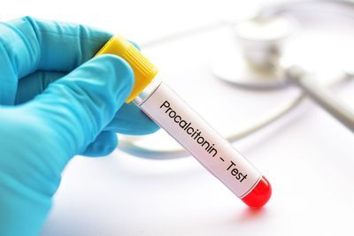 Could Procalcitonin Tests Reduce Antibiotic Use in COVID-19?