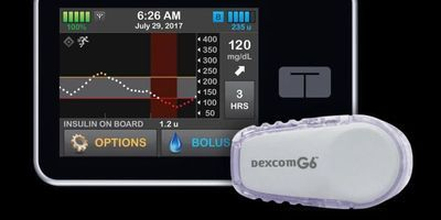Study: Artificial Pancreas Effective for Children Ages 6-13