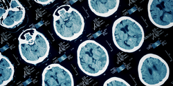 Point-of-Care Biomarker Assay for Traumatic Brain Injury