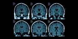 160 Genes Linked to Brain Shrinkage in Study of 45,000 Adults
