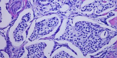 Single-Cell RNA Sequencing Reveals More Detail in Pancreatic Tumors