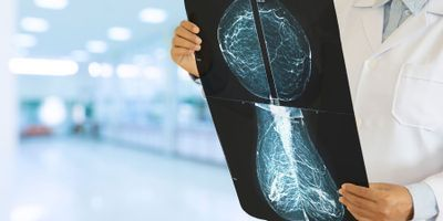 Fast MRI Detects Breast Cancers That 3D Mammograms May Miss