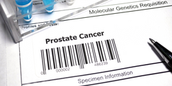 Gene Signature Predicts Whether Localized Prostate Cancer Is Likely to Spread