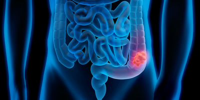 New Prognostic Markers for Colon Cancer Identified
