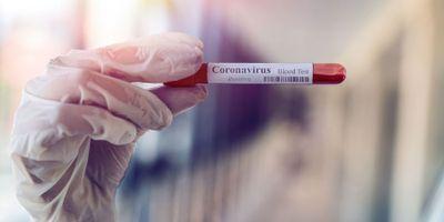 Researchers Identify Three Possible Therapeutics for COVID-19