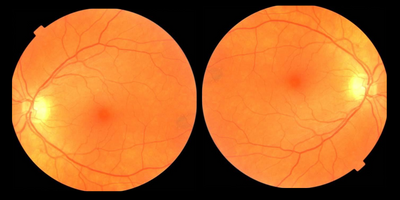 Eye Exam Could Lead to Early Parkinson's Disease Diagnosis