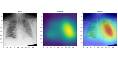 AI Detects COVID-19 on Chest X-Rays With Accuracy and Speed