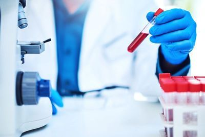 COVID-19 Pandemic Responsible for Decrease in Hepatitis C Testing