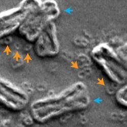 Breaking Bad: How Shattered Chromosomes Make Cancer Cells Drug-Resistant