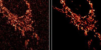 Researchers Use AI to Improve Microscope Image Quality