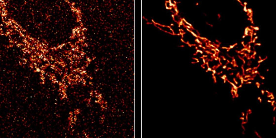 Researchers Use AI to Improve Microscope Image Quality
