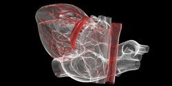 Lab-Created Heart Valves Can Grow with the Recipient