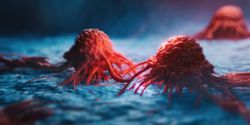 Spatial Transcriptomics Is Transforming Immuno-Oncology Research