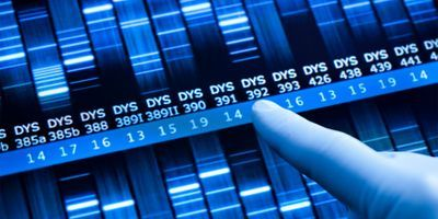 Probabilistic Genotyping in the Forensic Lab