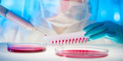 Upstream Bioprocessing: Innovative Trends and Developments in Cell Line Development