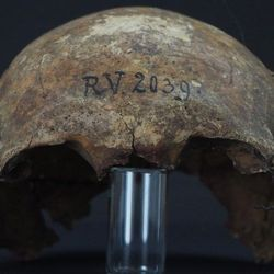 This 5,000-Year-Old Man Had the Earliest Known Strain of Plague