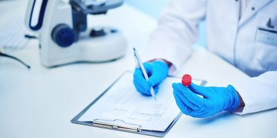 Sample Preparation in Forensic Toxicological Analysis May Have Huge Impacts