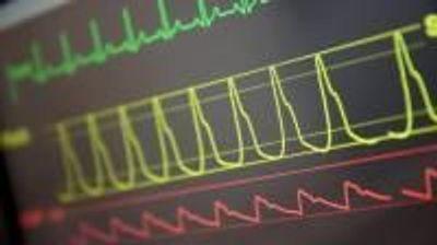 Algorithm Uses Disease History to Predict Intensive Care Patients' Chances of Survival